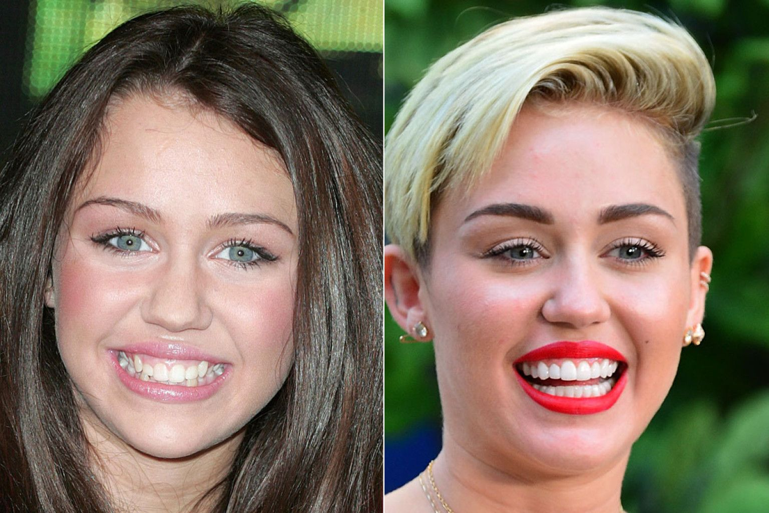20 Hollywood Celebs You Didn't Know Have Fake Teeth
