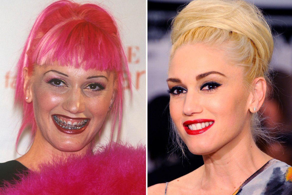 20 Celebrities You Won't Believe Had Braces