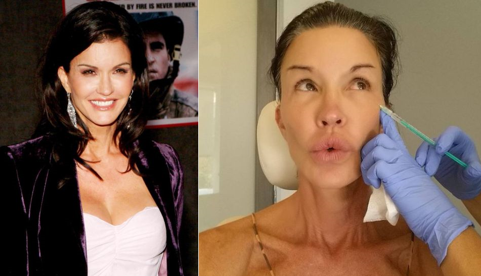 13 Celebrities Who Are Basically Plastic