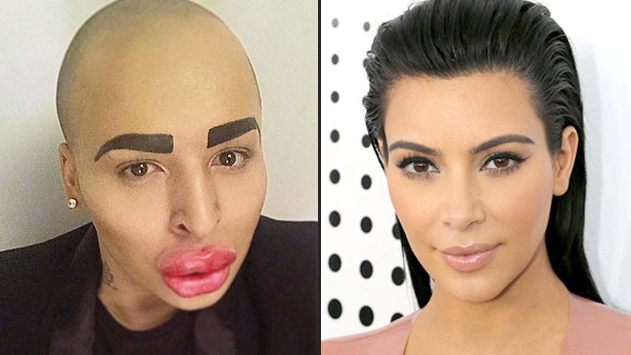 People Who Abused Plastic Surgery To Look Like Celebrities