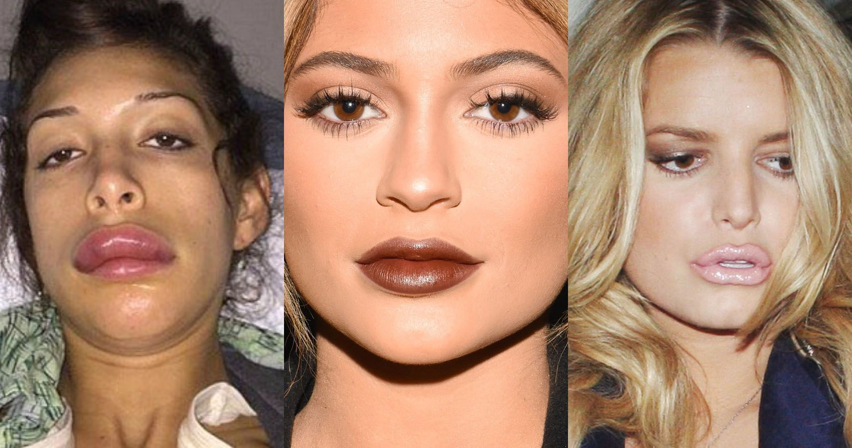 10 Celebs Rumored To Have Had Their Lips Done After Kylie Jenner Did