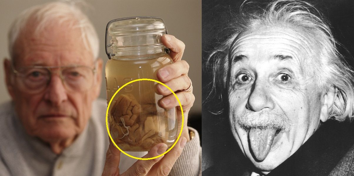 15 Disturbing Facts You Didn't Know About Einstein