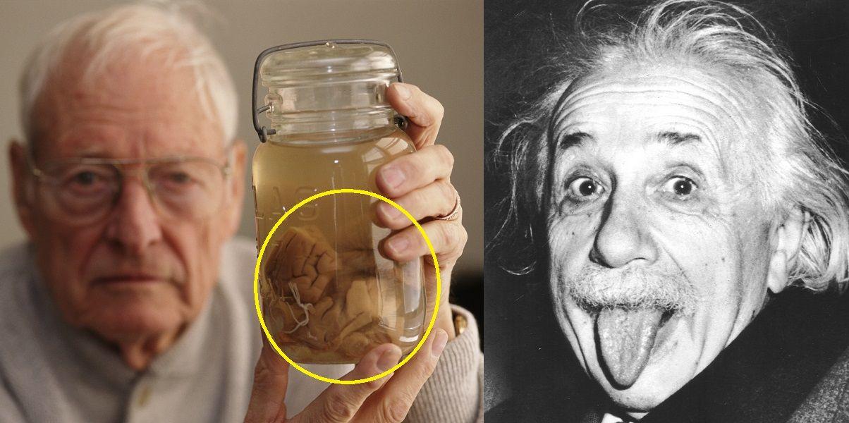 15 Disturbing Facts You Didn't Know About Einstein