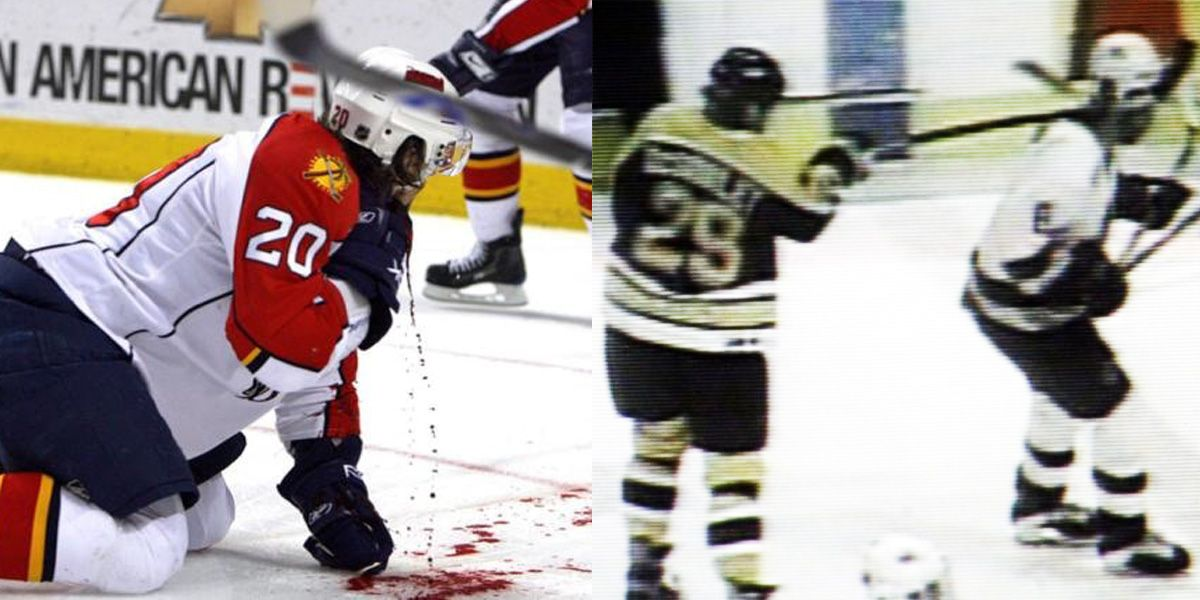 15 Most Shocking Injuries In Nhl History Therichest