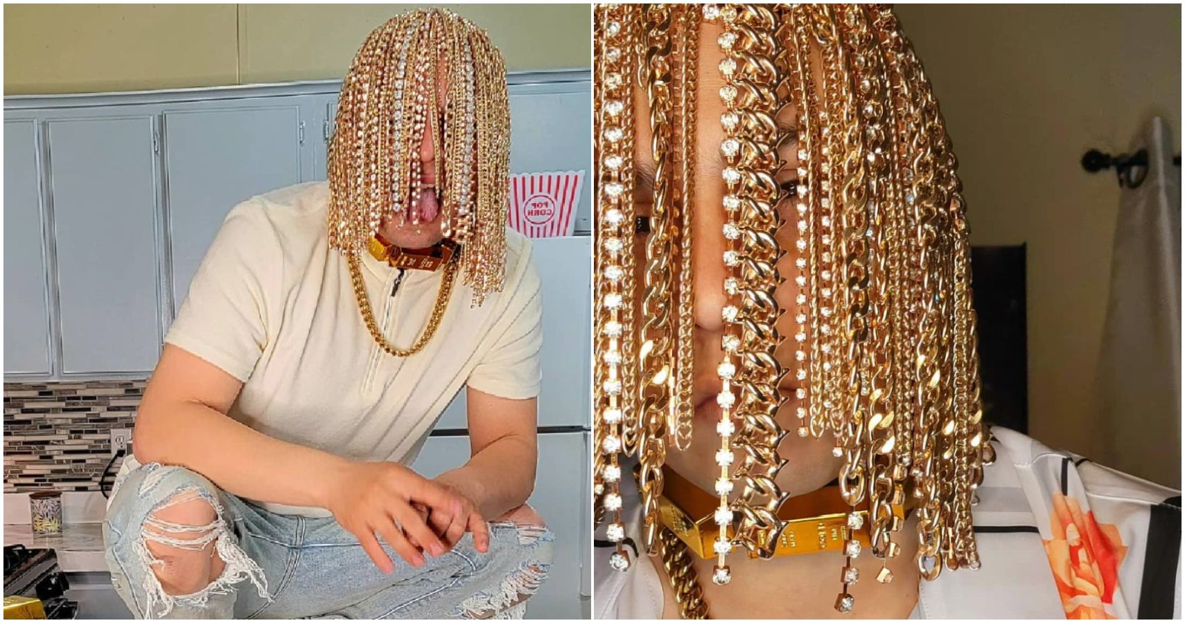 Gold Rush: Rapper Dan Sur Replaces Hair With Surgically Implanted Gold Chains